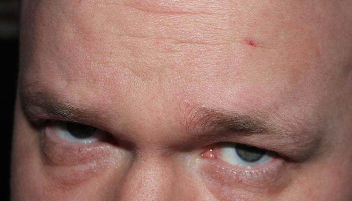 BLODIG START: Sjekk det såret, da! Ganske drøyt, ikke sant?